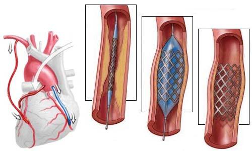Положена ли группа инвалидности после операции шунтирования на сердце