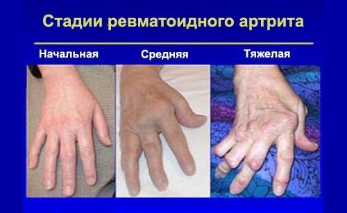 Дают ли инвалидность при ревматоидном артрите: порядок оформления и группа