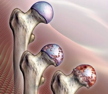 Процедура получения инвалидности при гонартрозе коленного сустава