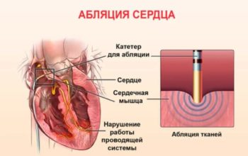 Список заболеваний сердца для получения инвалидности: при каких дают
