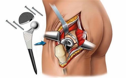 Положена ли инвалидность после эндопротезирования тазобедренного сустава