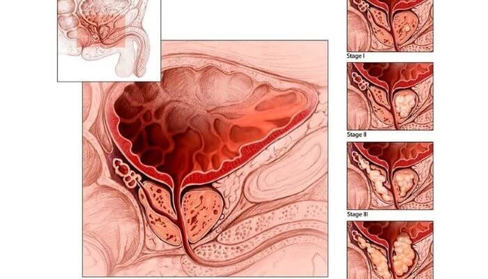 Лечение застойного (конгестивного) простатита