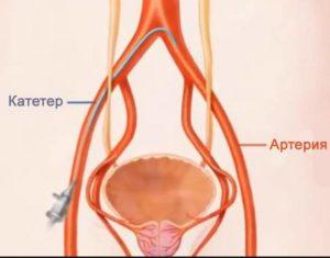 Операция по удалению аденомы простаты