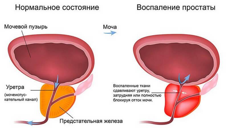Лечение цистита у мужчин в домашних условиях быстро и эффективно
